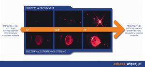 W akrylu hydrofobowym użytym w soczewkach firmy CRISTALENS nie występuje tzw. efekt glistening
